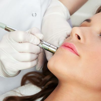women-getting-a-microdermabrasion-in-san-diego-california